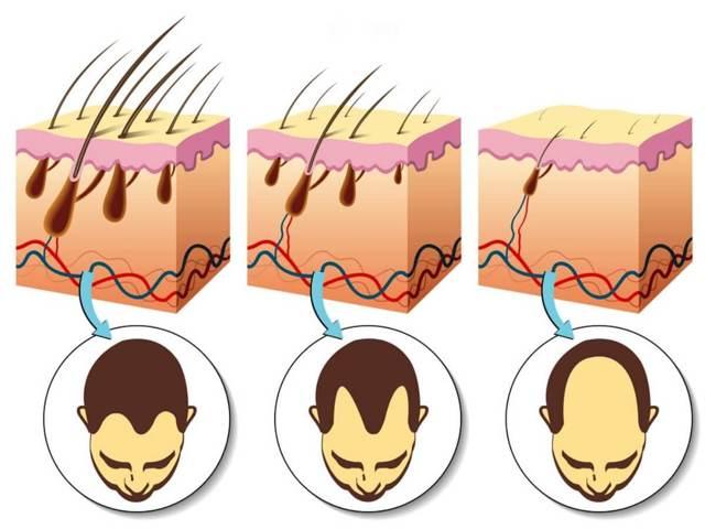 Андрогенная алопеция у мужчин и женщин – какие симптомы и способы лечения