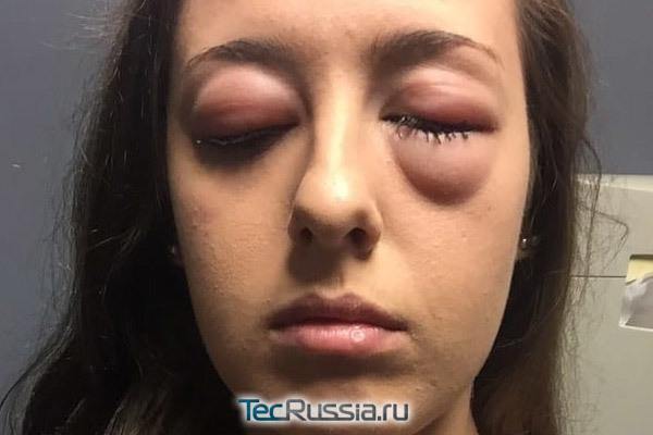Аллергия на «Ботокс» – бывает ли и в чем выражается, местные и общие симптомы реакции