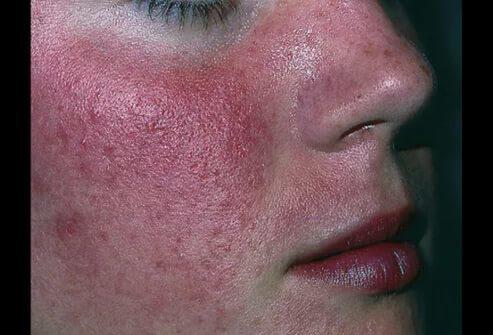 Хеликобактер пилори и прыщи на лице – вызывает ли бактерия проблемы с кожей и какое нужно лечение