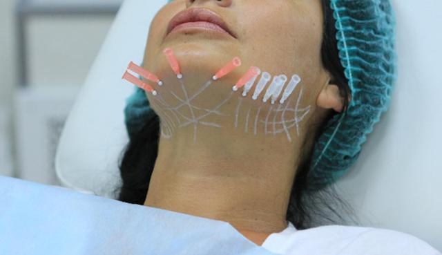 Нити «Аптос» – что такое нитевой лифтинг, кому показана процедура подтяжки лица aptos, плюсы и минусы