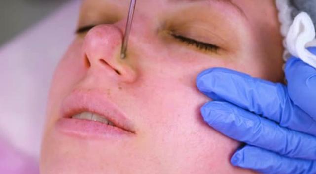 Чистка лица профессиональная у косметолога – какая лучше и эффективнее, как часто делать, плюсы и минусы