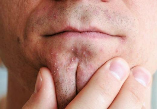 Белые прыщики на лице – причины появления и особенности, как избавиться от маленьких угрей в домашних условиях