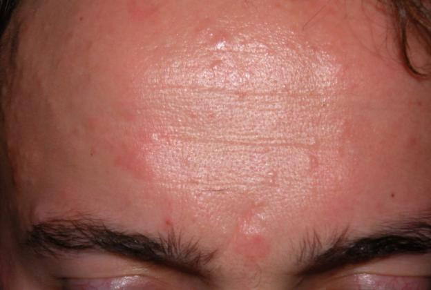 Прыщи после антибиотиков – почему появляются на лице после приема лекарств и как их лечить, обзор средств