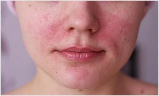 Гепариновая мазь от купероза на лице – помогает ли избавиться от сосудистых звездочек, инструкция