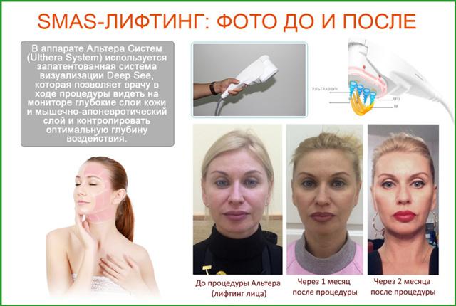 ulthera system – вся правда об аппарате для ультразвукового лифтинга «Альтера Систем», особенности процедуры