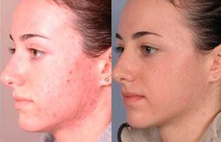 Чистка лица жидким азотом – преимущества и недостатки пилинга, показания и реабилитация, особенности