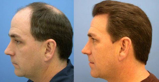 Мезотерапия для волос – что это такое, особенности процедуры и противопоказания, плюсы и минусы