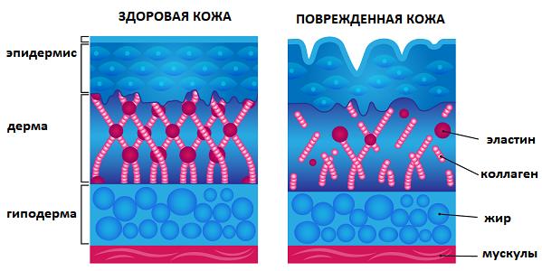 Коралловый пилинг для лица – эффективность и особенности, противопоказания и реабилитация, плюсы и минусы