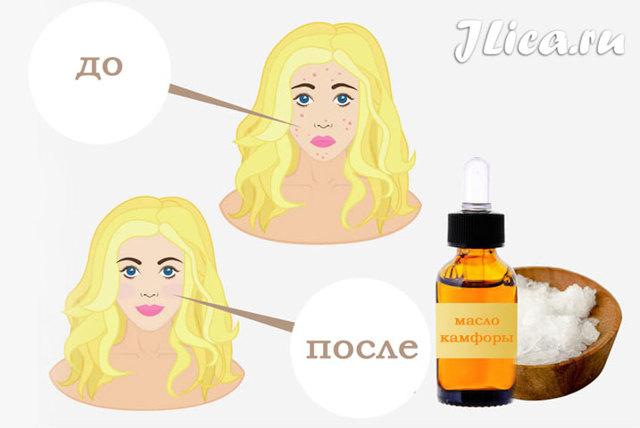 Камфорное масло для лица – свойства и применение в косметологии, чем полезно для кожи, маски от прыщей и морщин