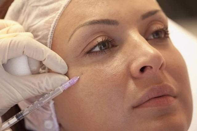 Мезотерапия вокруг глаз – техника проведения процедуры от темных кругов, синяков и мешков