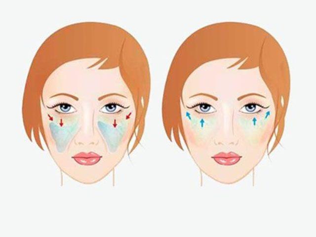 Чек-лифтинг – что это такое, особенности операции по подтяжке лица, фото до и после, реабилитация