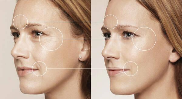 Крем «Пантенол» для лица, гель и мазь – что лучше, инструкция по применению от морщин и от прыщей