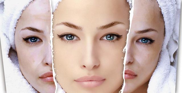 Хлорид кальция для лица – пилинг в домашних условиях и салоне, рецепты чистки хлористым и детским мылом