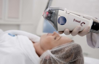 «Фраксель» – лазерная терапия кожи лица: последствия омоложения и пилинга fraxel, отзывы и реабилитация