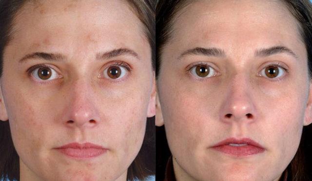 Чистка лица вакуумная – что это такое и какие противопоказания, пилинг и очищение пор в домашних условиях