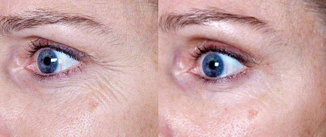 Гепариновая мазь от морщин – инструкция по применению в косметологии, можно ли мазать лицо и под глазами