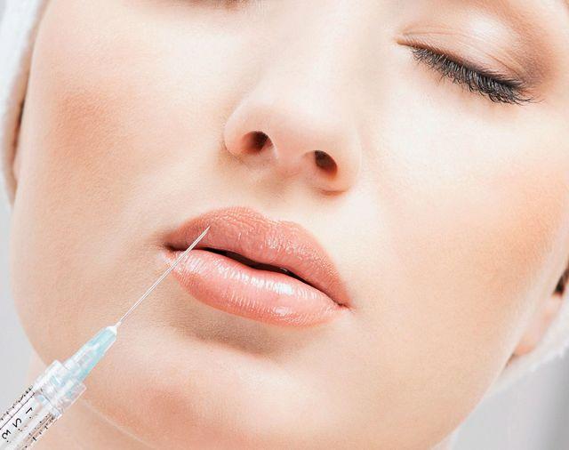 Отек после гиалуроновой кислоты – что делать с патологической припухлостью, меры профилактики